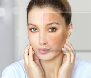 What Are the Benefits of the Vbeam Laser Treatment with Jupiter, FL Area Doctor?