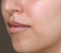 Juvederm Volbella After 04