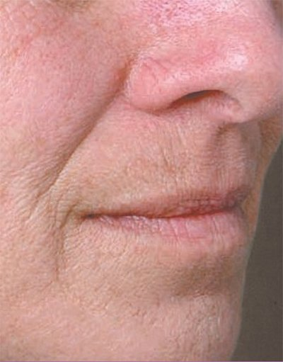 Juvederm Volbella treatment patient before