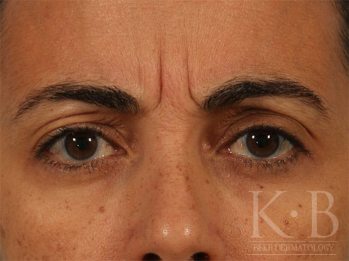 Botox patient before