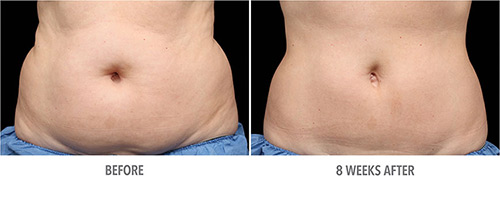 Coolsculpting Before and After 01