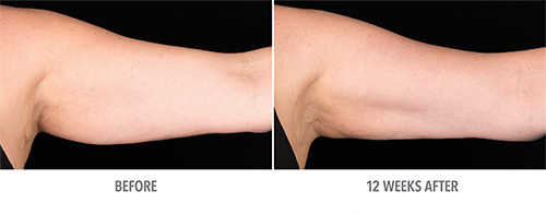 Coolsculpting Before and After 12