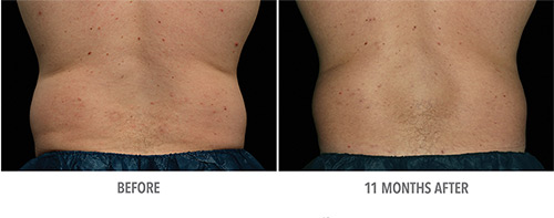 Coolsculpting Before and After 16