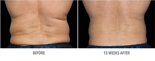 Coolsculpting Before and After 17