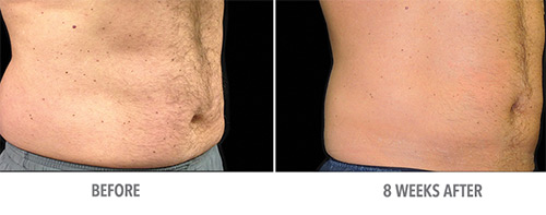 Coolsculpting Before and After 02