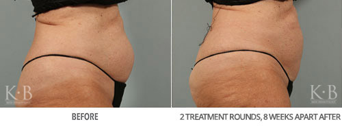 Coolsculpting Before and After32