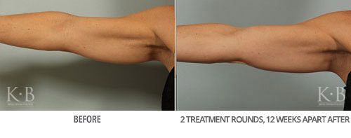 Coolsculpting Before and After 35
