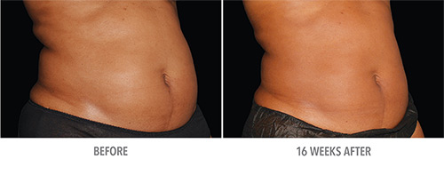Coolsculpting Before and After 04