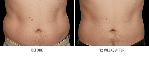 Coolsculpting Before and After 05