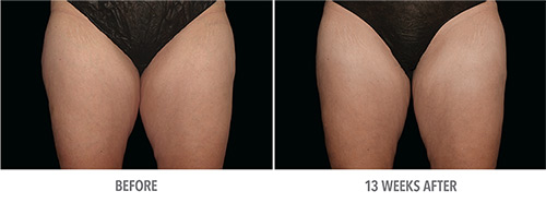 Coolsculpting Before and After 07