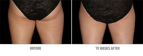Coolsculpting Before and After 08