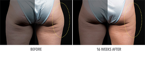 Coolsculpting Before and After 09