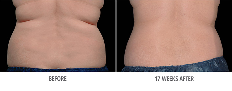 before and after actual patient of Coolsculpting®