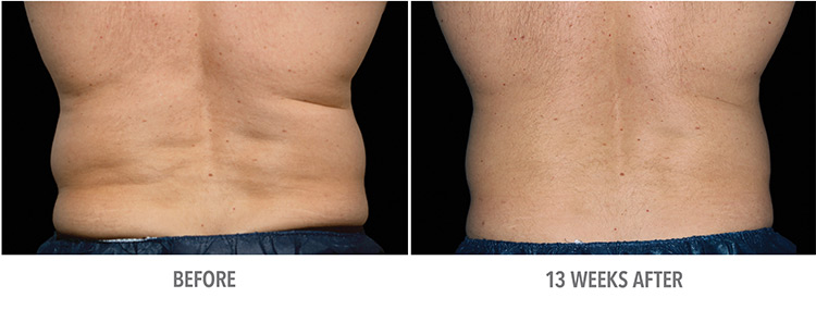 CoolSculpting® West Palm Beach - Jupiter - Fat Freezing