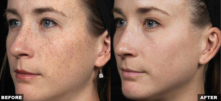 Fraxel Laser Treatment West Palm Beach - Jupiter - Skin Resurfacing