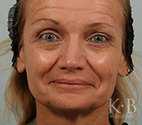 Juvederm Before 10