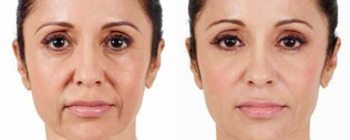 Juvederm Before and After 01