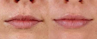Juvederm Before and After 03