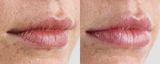 Juvederm Before and After 04