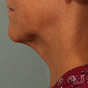 kybella treatment patient after