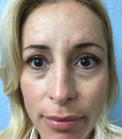 restylane treatment patient after