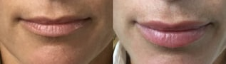 Restylane Before and After 01