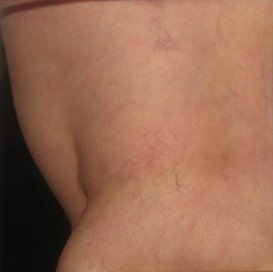 scelerotherapy treatment patient after