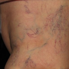 scelerotherapy treatment patient before