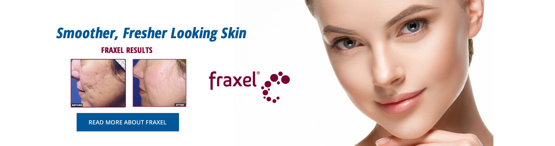 Fraxel Treatment  At Beer Dermatology West Palm Beach